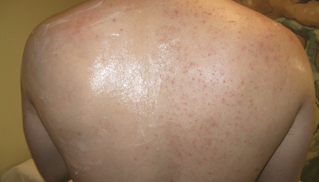 picture of a man's back with red, inflamed follicles