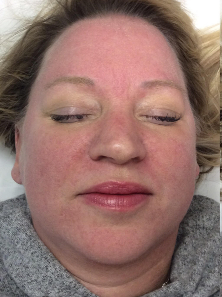 Colorescience After Dermabrasion Before