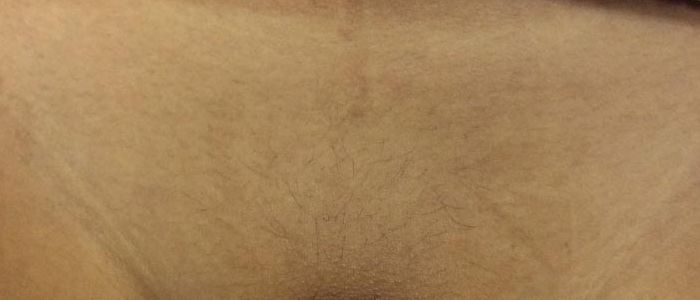 Female Laser Hair Removal After