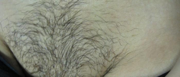 Laser Hair Removal Bikini 2 Before