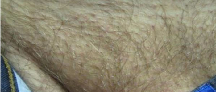 Laser Hair Removal Bikini 4 Before