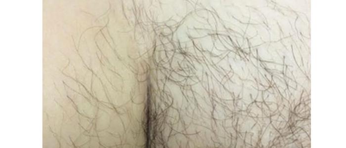 Laser Hair Removal Bikini 7 Before