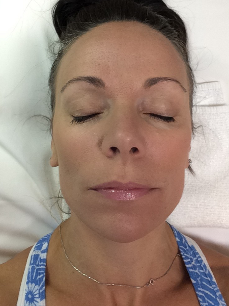 Microdermabrasion After with Colorescience