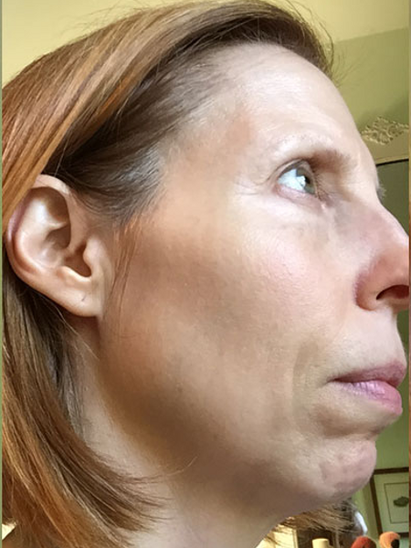 Photofacial on Side of Face After