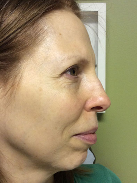 Photofacial on Side of Face Before