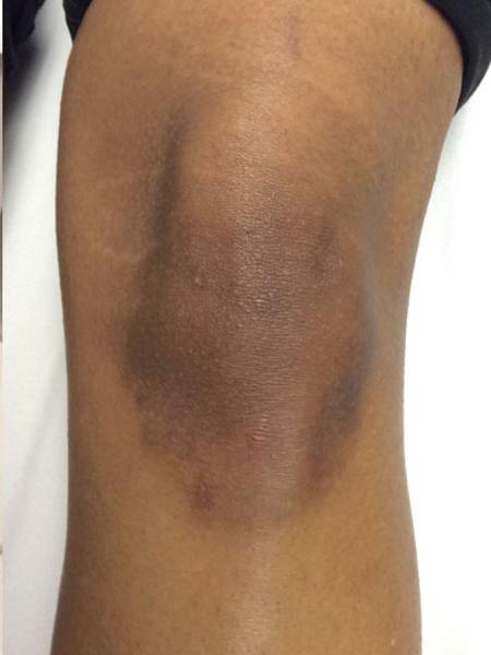 Photorejuvenation Knee After