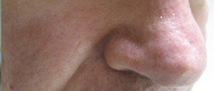 Photorejuvenation Nose After