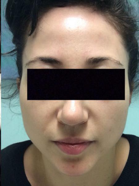 Photorejuvenation Womans Face After