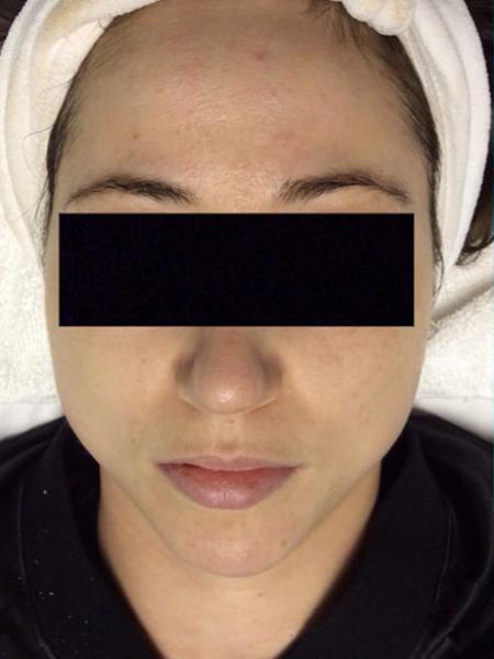 Photorejuvenation Womans Face Before