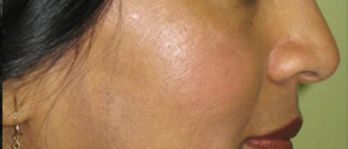 Photorejuvenation for Pigment on Face After