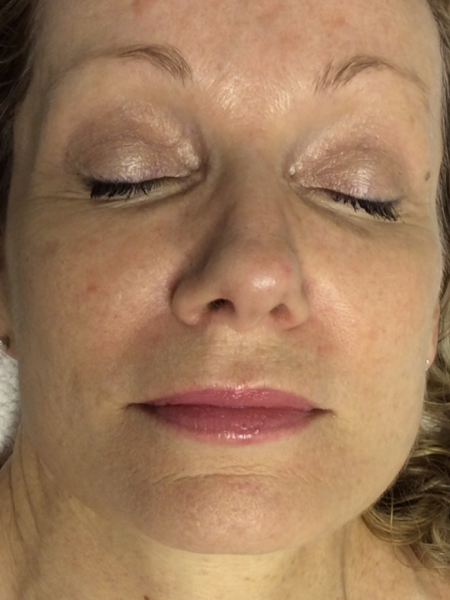 Photorejuvenation on a Womans Face After