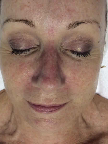 Photorejuvenation on a Womans Face Before