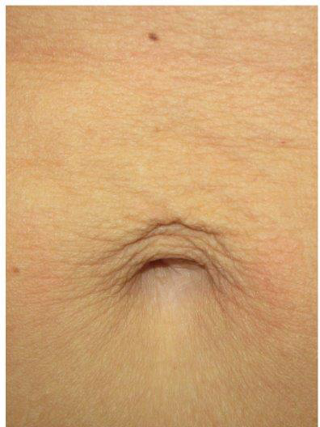 Skin Tightening Stomach Before