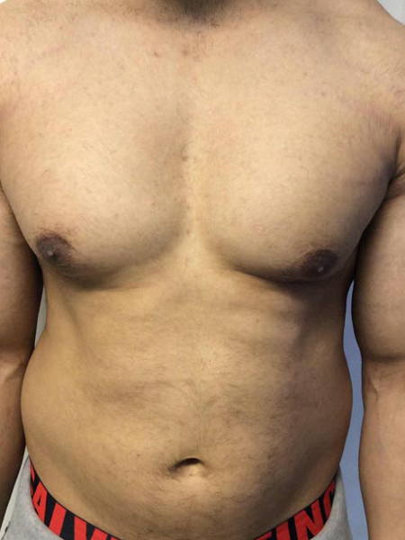 laser hair removal man chest and stomach after