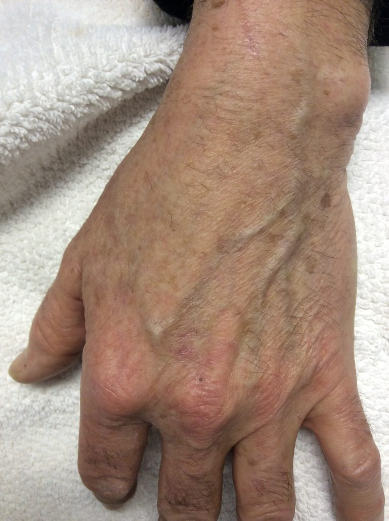 Age spot removal on your hands