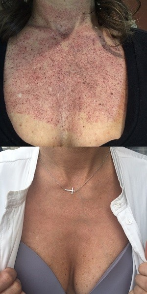 IPL Skin Rejuvenation Treatment | Photo Facial | Photorejuvenation