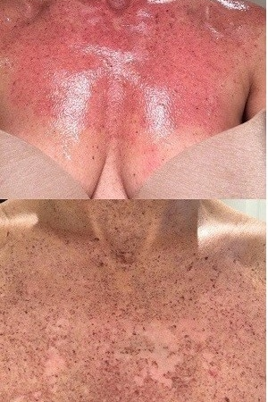 Photorejuvenation treatment for sun damage, spots and more